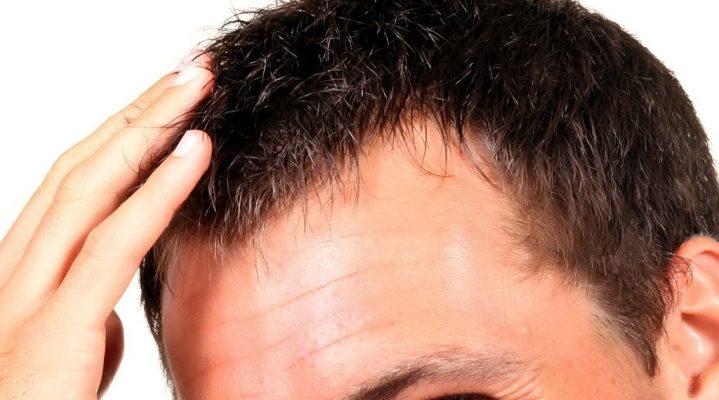 La greffe de cheveux : une technique efficace pour lutter contre la calvitie