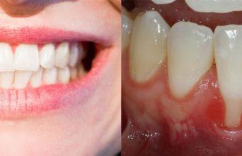 La greffe gingivale : plus qu'une chirurgie réparatrice